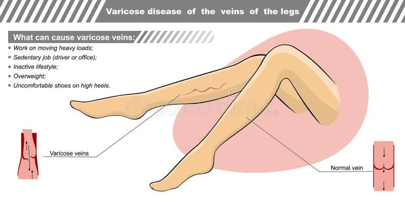 Illustrazione di vettore una malattia varicosa delle vene royalty illustrazione gratis