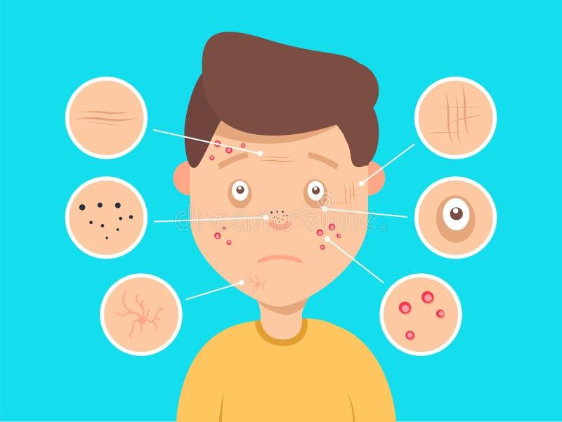 Illustrazione facciale maschio di problemi di pelle Acne e punti scuri, grinze e cerchi sotto gli occhi per i cosmetici illustrazione vettoriale