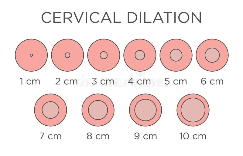 Illustrazione medica di dilatazione cervicale - grafico nei centimetri royalty illustrazione gratis
