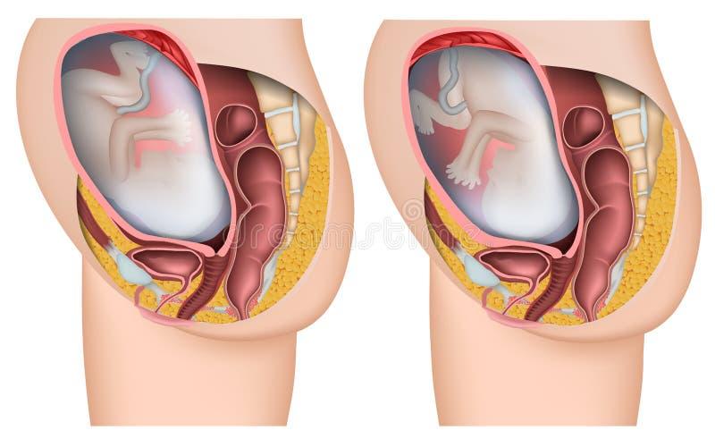 Illustrazione medica di posizione 3d del feto illustrazione vettoriale