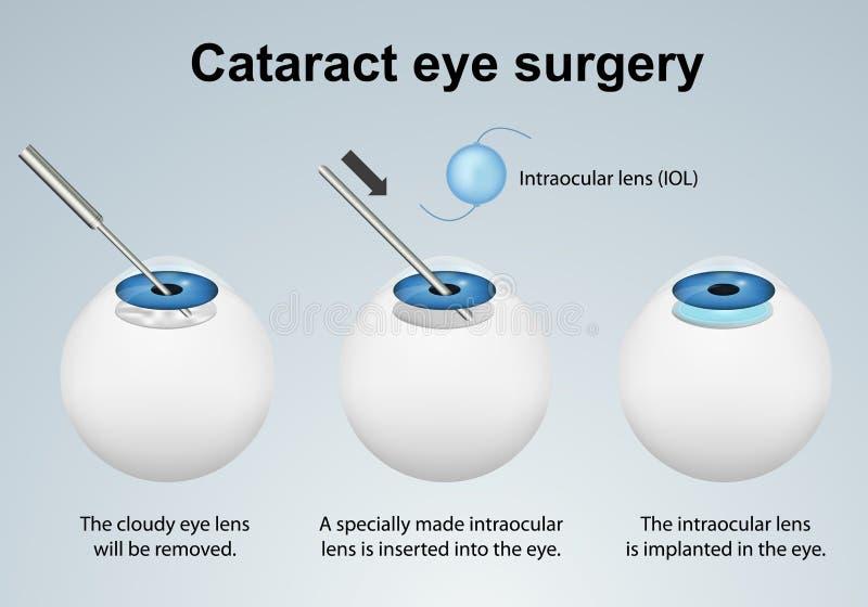 Illustrazione medica di vettore di processo della chirurgia dell'occhio della cataratta isolata su fondo grigio illustrazione vettoriale