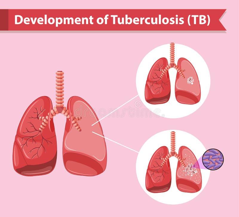 Illustrazione medica scientifica della tubercolosi royalty illustrazione gratis