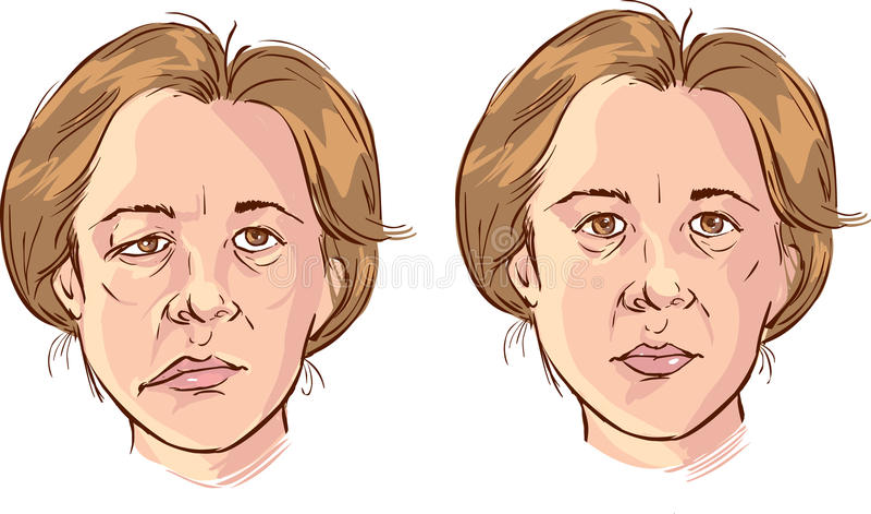 Illustrazione sbilenca facciale fotografie stock