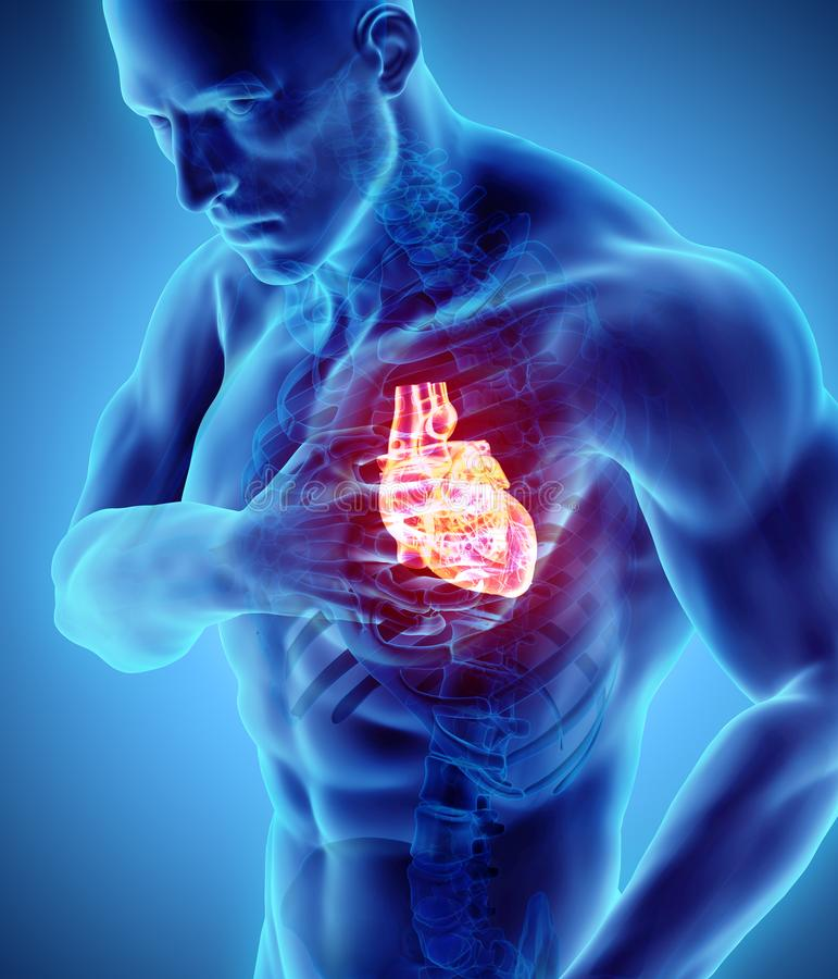 ilustração 3d do cardíaco de ataque humano ilustração stock
