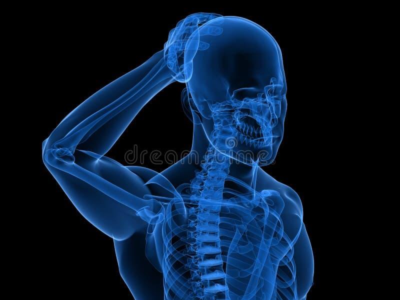 Ilustração da dor de cabeça/enxaqueca ilustração do vetor