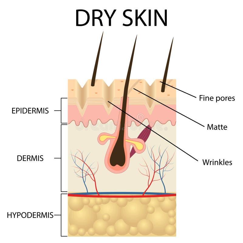 Ilustração das camadas de pele seca ilustração royalty free