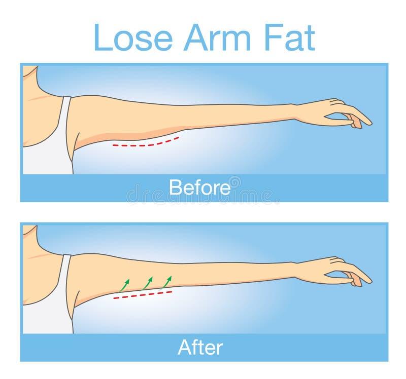 A ilustração de antes e depois de perde a gordura do braço ilustração stock