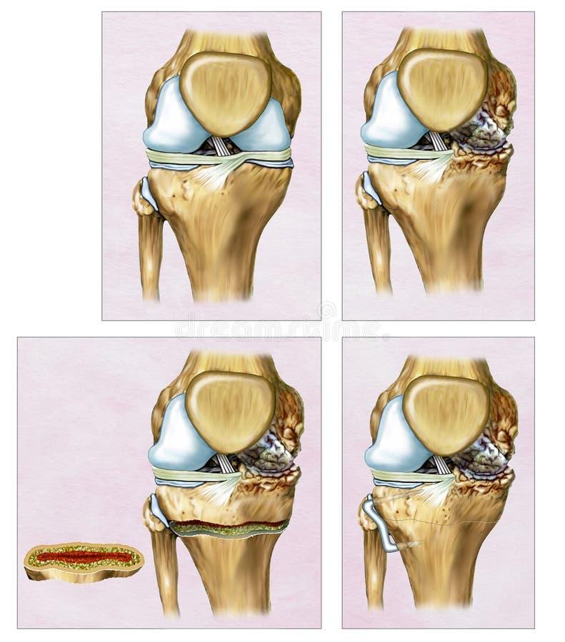 Ilustração descritiva um Osteotomy ou uma correção do joelho onde o fêmur e a tíbia parecem curvados ilustração do vetor