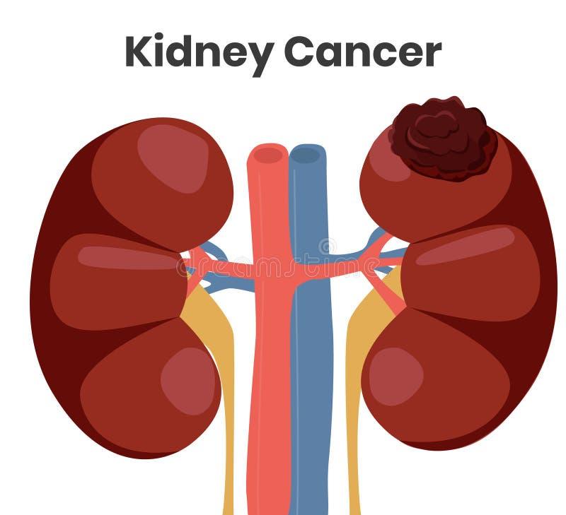 Ilustração do vetor do câncer do rim O tumor está afetando o rim esquerdo quando o rim direito for normal ilustração do vetor