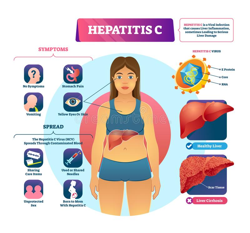 Ilustração do vetor da hepatite C Esquema etiquetado da explicação da infecção viral ilustração royalty free