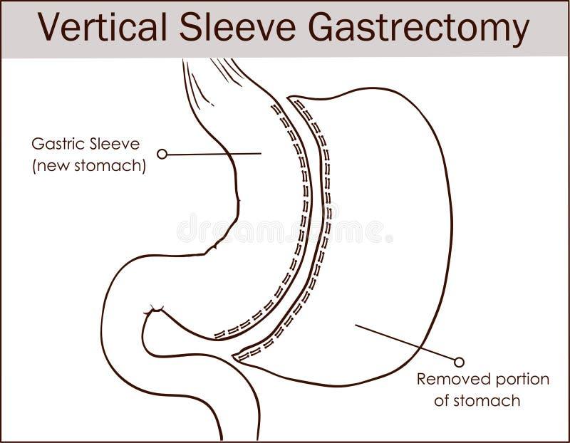 Ilustração do vetor da incisão do estômago vertical da luva ilustração do vetor