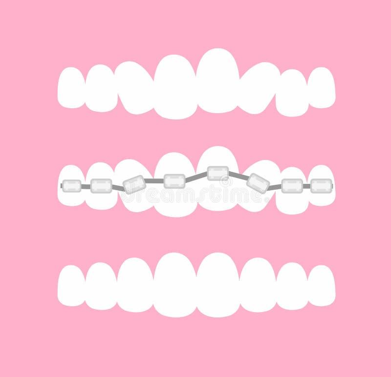 Ilustração do vetor das fases de cintas ortodônticas do tratamento nos dentes Dentes antes e depois das cintas no rosa ilustração stock