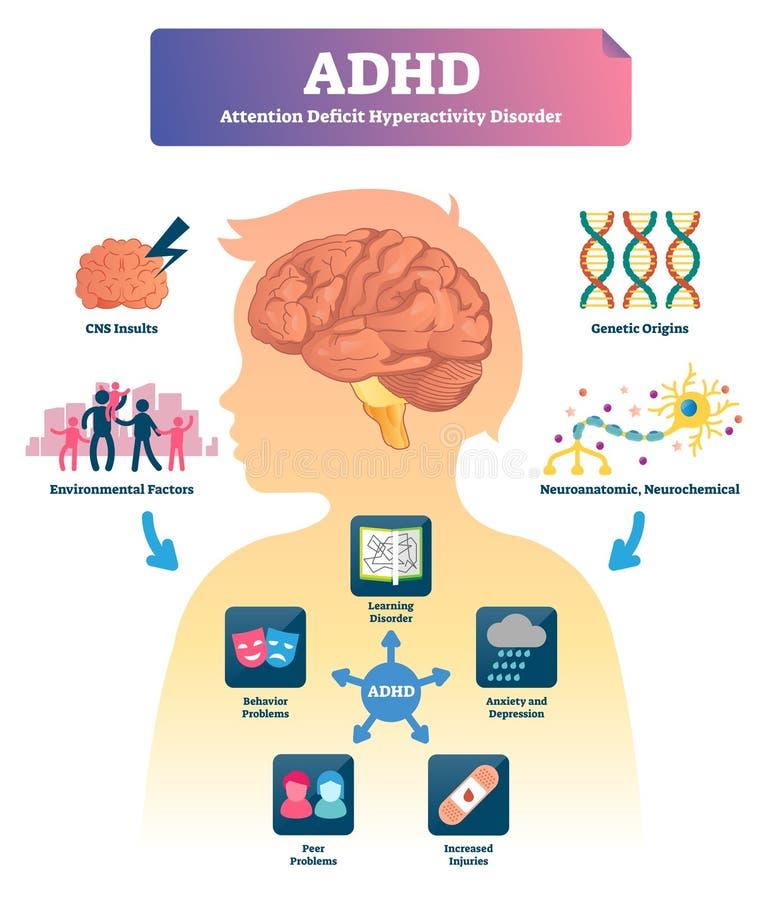Ilustração do vetor de ADHD Esquema etiquetado do transtorno de deficit de atenção da mente ilustração stock