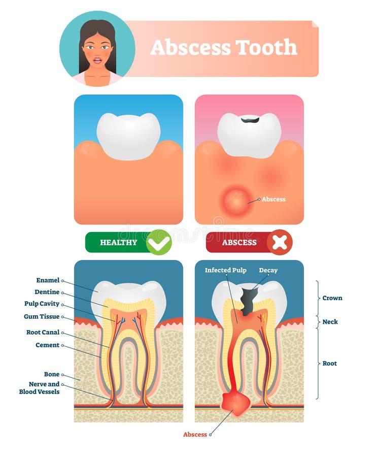 Ilustração do vetor do dente do abcesso Diagrama médico etiquetado com estrutura ilustração stock