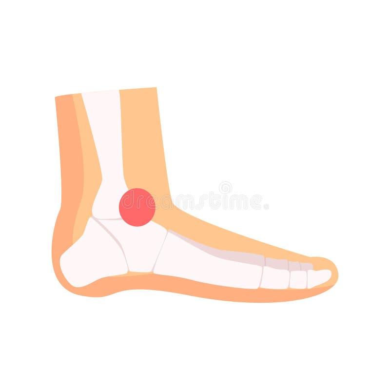 Ilustração do vetor dos desenhos animados da dor articular do tornozelo ilustração do vetor