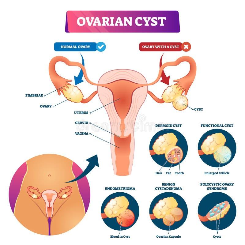 Ilustração do vetor do quisto ovariano Os tipos etiquetados do problema médico planejam ilustração do vetor