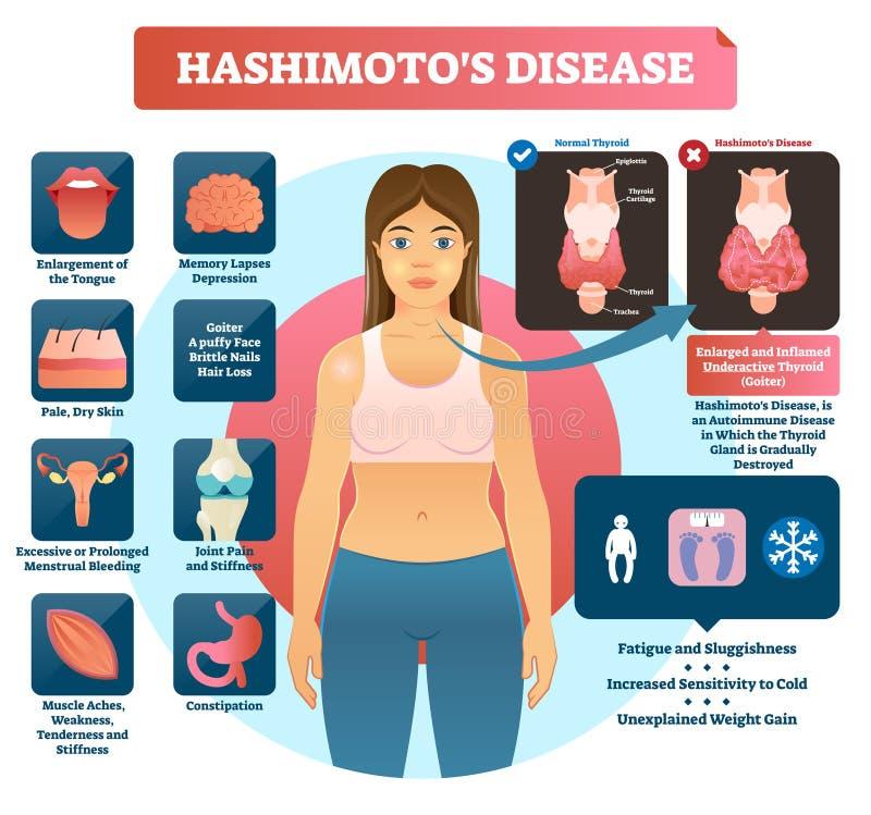 Ilustração do vetor do thyroiditis de Hashimotos Diagrama médico etiquetado ilustração do vetor