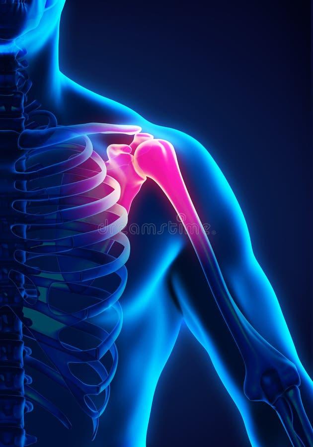 Ilustração dolorosa do ombro ilustração stock