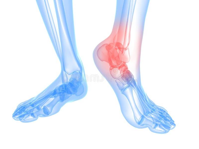 Ilustração dolorosa do tornozelo ilustração do vetor