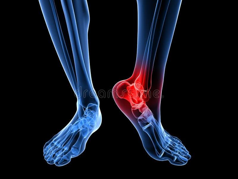 Ilustração dolorosa do tornozelo ilustração stock