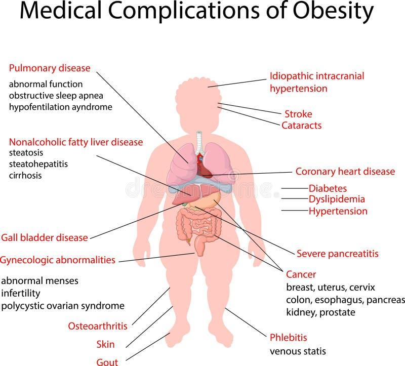 Ilustração dos desenhos animados da complicação médica da obesidade ilustração stock