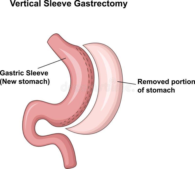Ilustração dos desenhos animados da incisão do estômago vertical da luva (VSG) ilustração do vetor
