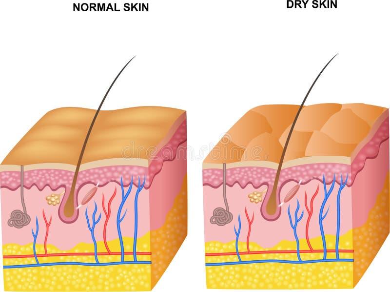 Ilustração dos desenhos animados das camadas pele normal e pele seca ilustração do vetor
