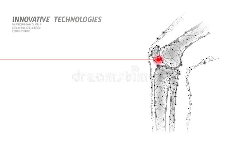 Ilustração humana do vetor do modelo da articulação do joelho 3d Tratamento futuro da dor da cura da tecnologia do baixo projeto  ilustração royalty free