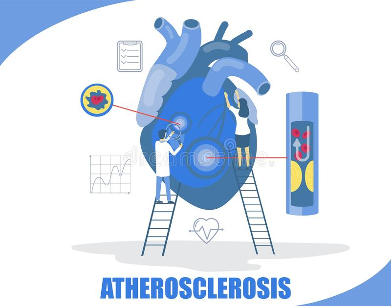 Ilustração lisa do projeto do estilo do vetor do conceito da aterosclerose ilustração royalty free
