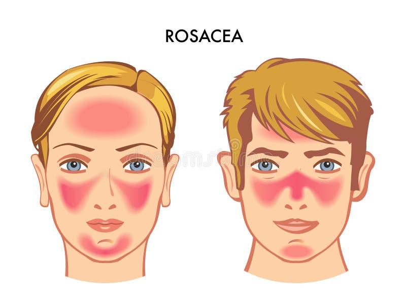 Ilustração médica de Rosacea na cara ilustração royalty free
