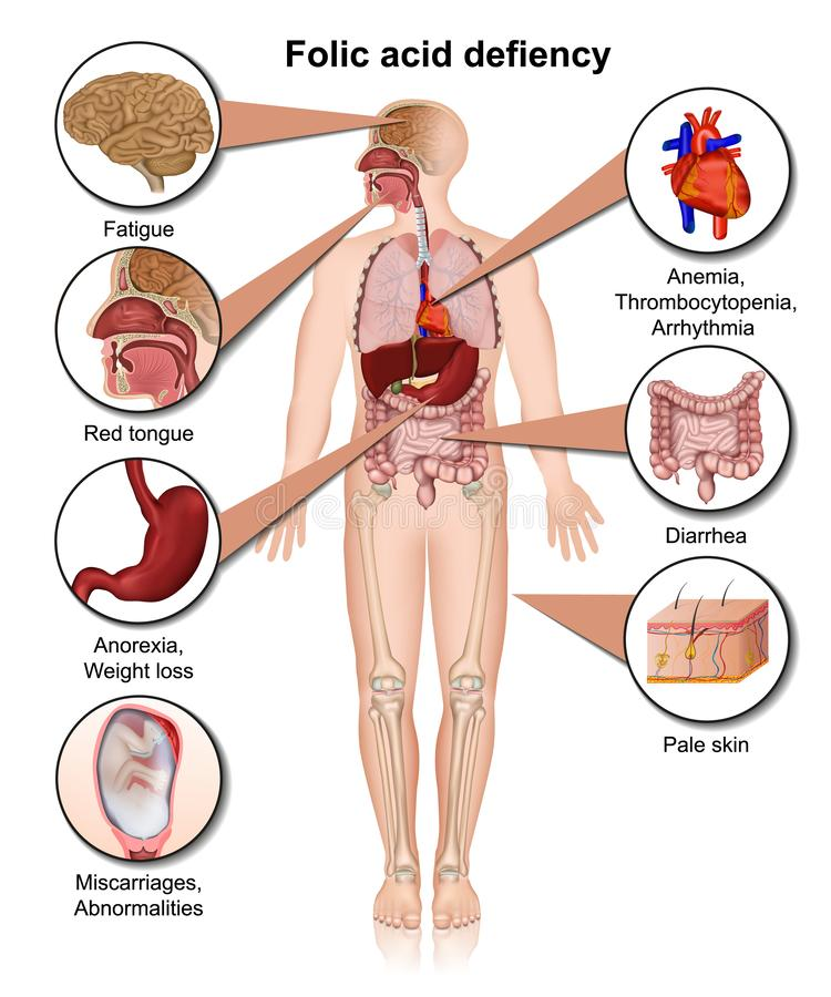 Ilustração médica do defiency 3d do ácido fólico infographic ilustração do vetor