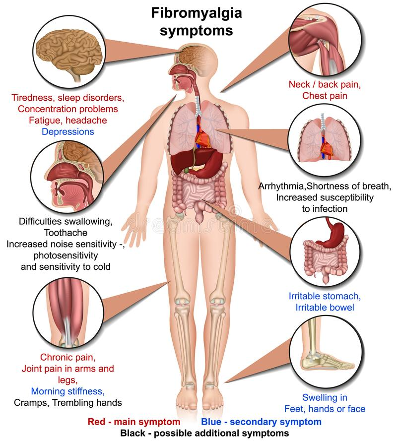 Ilustração médica do vetor dos sintomas da fibromialgia isolada no fundo branco infographic ilustração royalty free