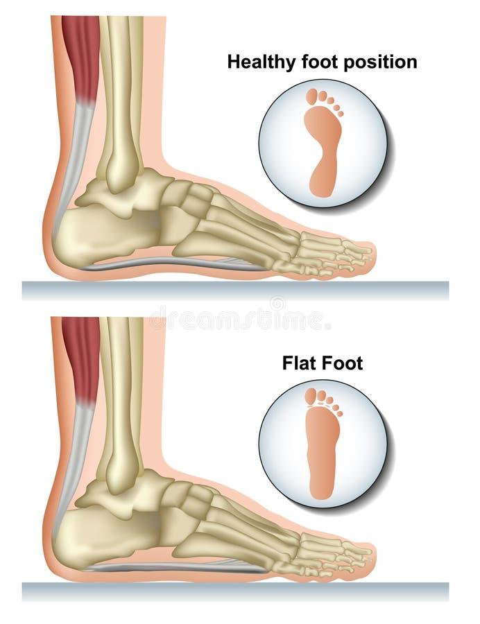 Ilustração médica do vetor do pé liso no fundo branco ilustração royalty free