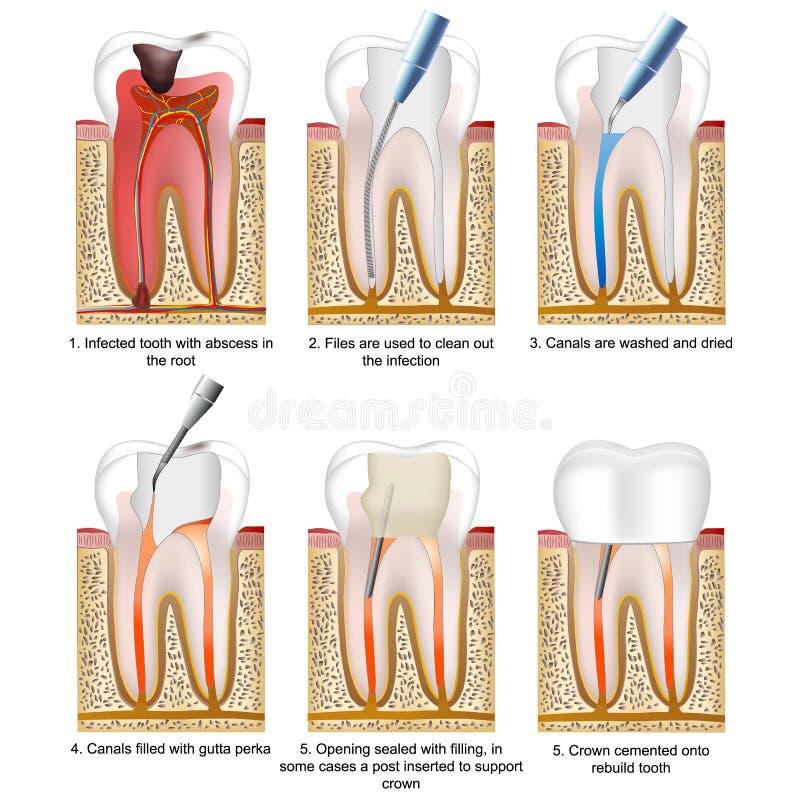 Ilustração médica do vetor do tratamento de canal de raiz isolada no fundo branco com descrição ilustração do vetor