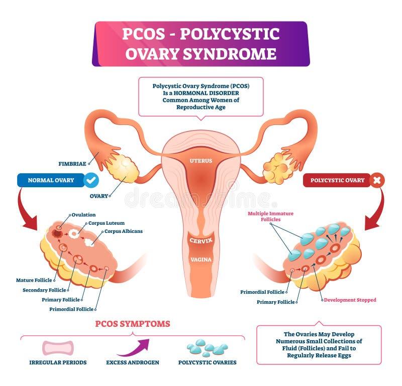 Ilustração Polycystic do vetor da síndrome do ovário Doença reprodutiva etiquetada ilustração royalty free