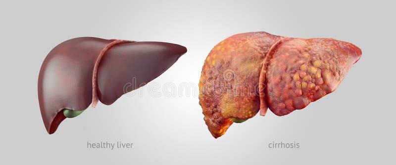 Ilustração realística dos fígados humanos saudáveis e doentes ilustração stock