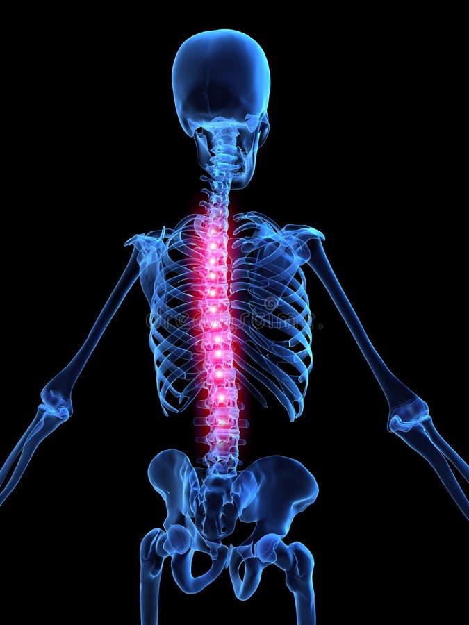 Ilustración del dolor de espalda ilustración del vector