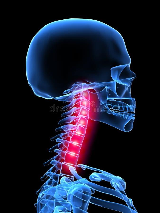 Ilustración del dolor de espalda libre illustration