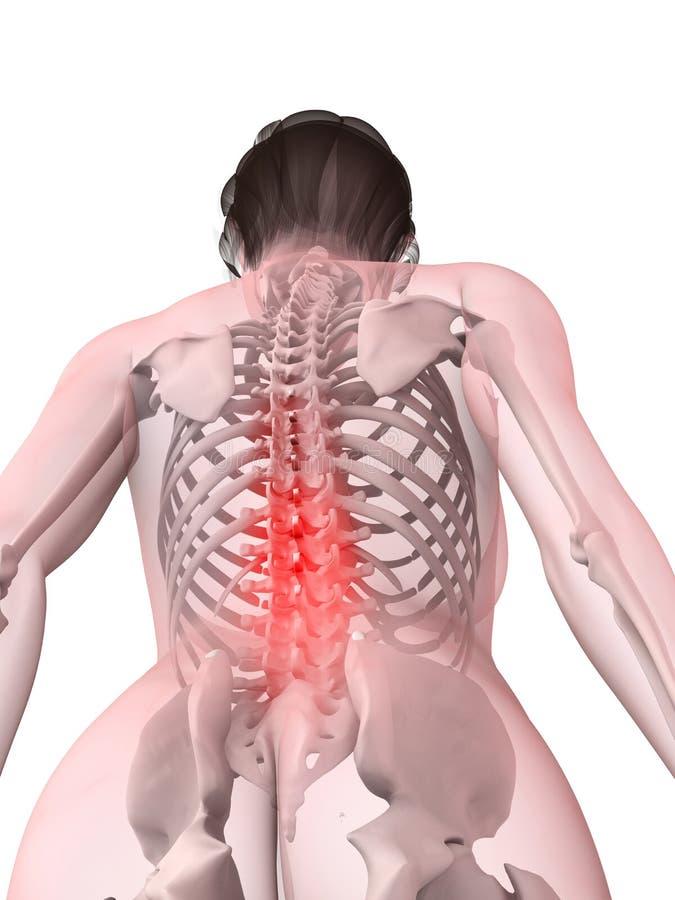 Ilustración femenina del dolor de espalda libre illustration