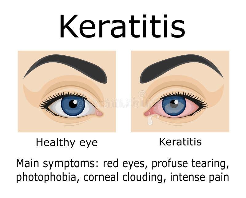 Ilustracja Keratitis choroba ilustracja wektor