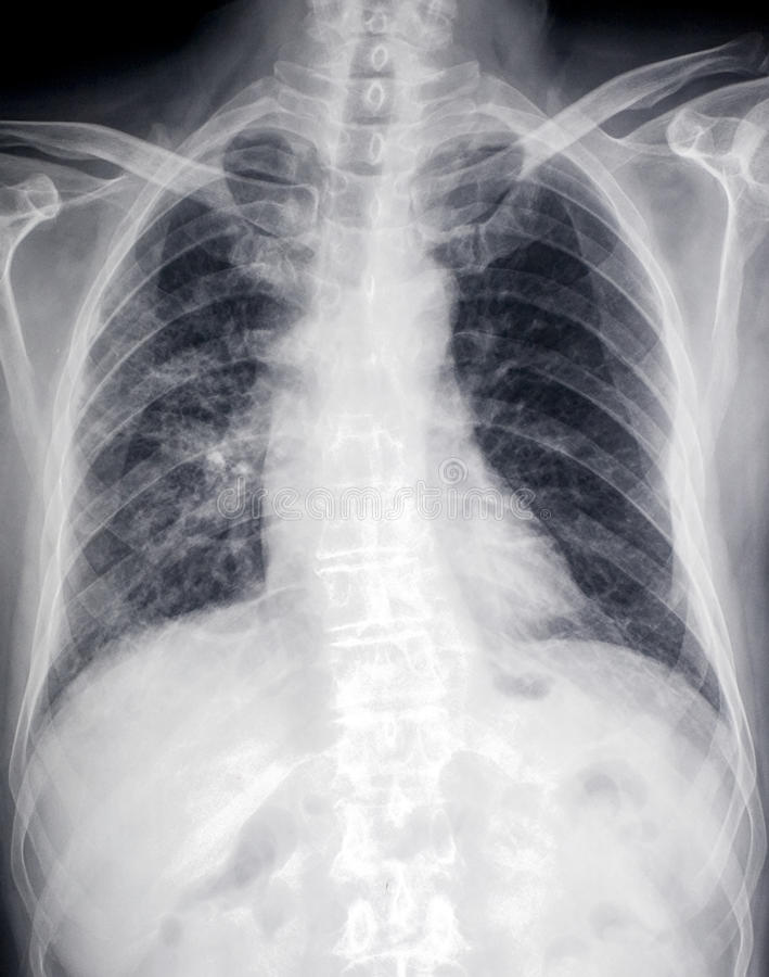 Image avant de rayon X de coeur et de coffre