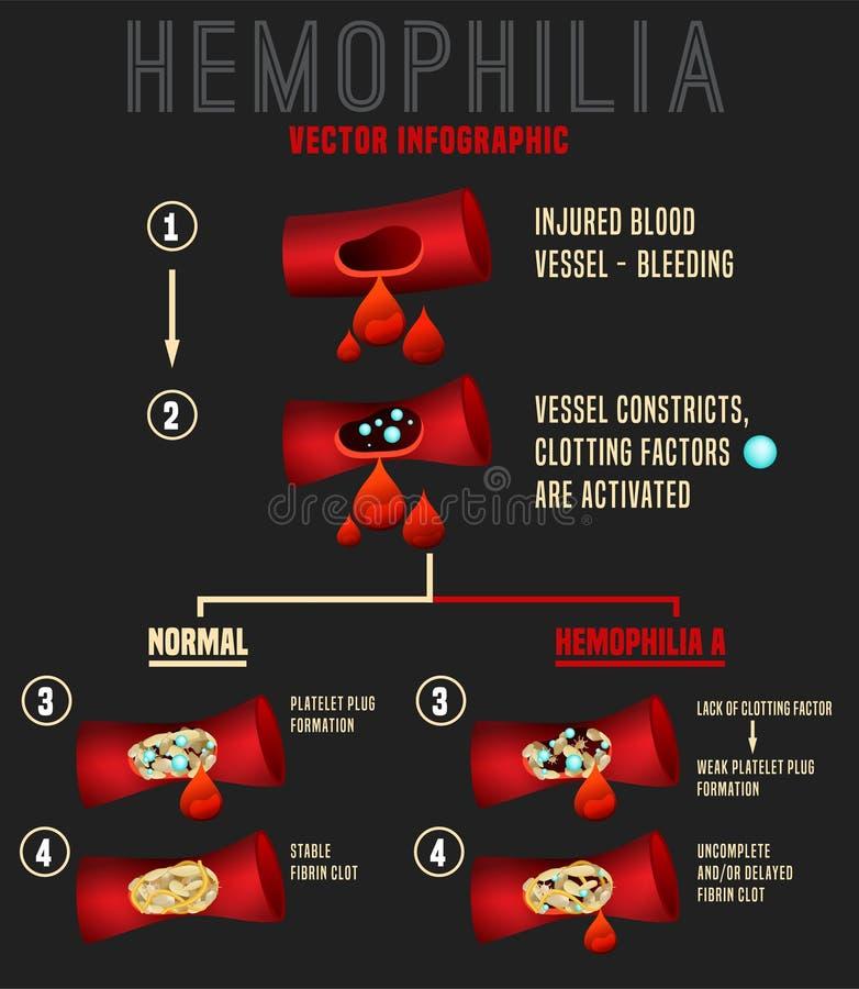 Image d'Infographics d'hémophilie illustration libre de droits