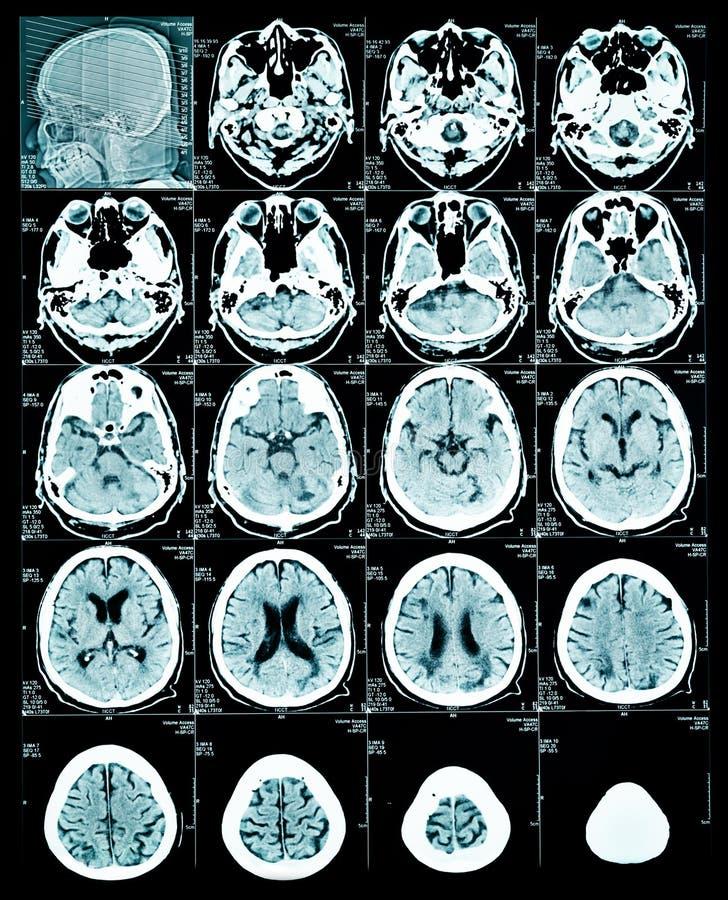 Image de balayage d'IRM de cerveau photo stock
