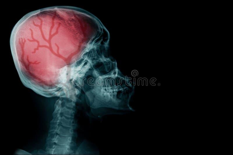 Image de rayon X avec la lumière rouge de taille photos stock
