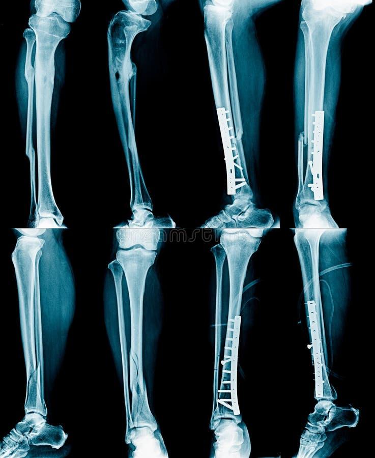 Image de rayon X de collection image libre de droits