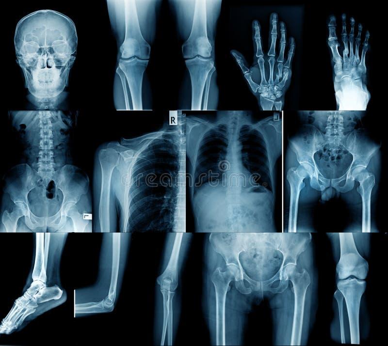Image de rayon X de collection photographie stock