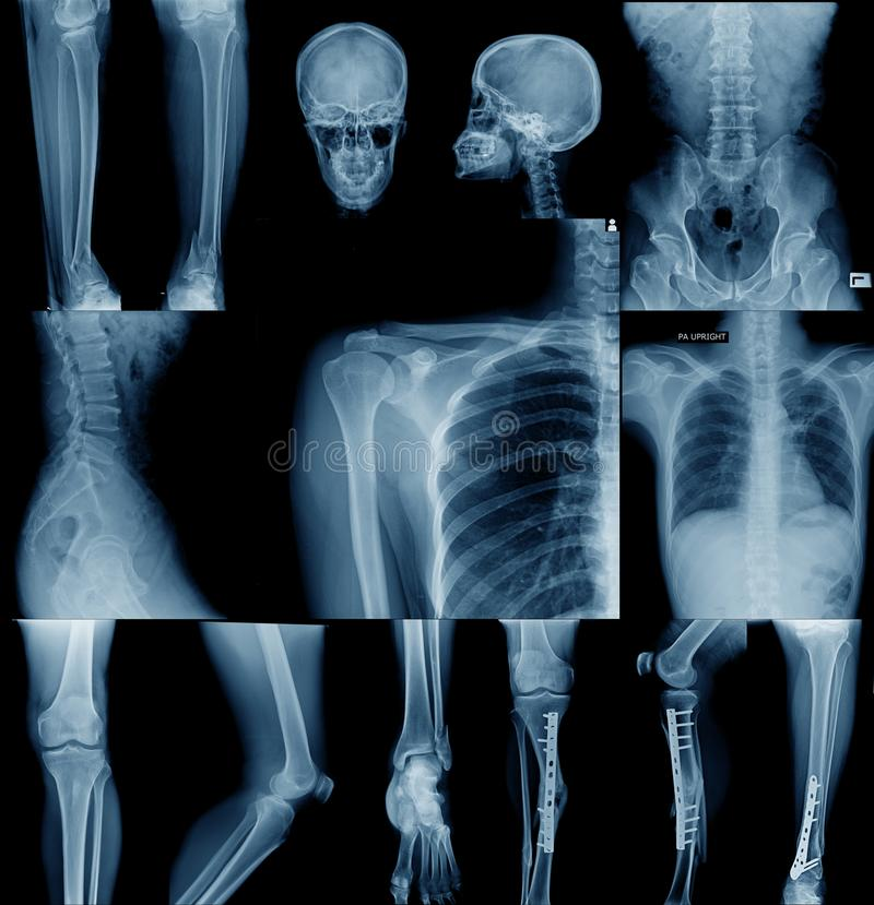 Image de rayon X de collection image stock