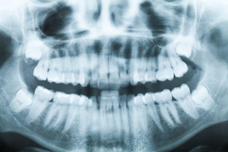 Image de rayon X de plan rapproché des dents et de la bouche photo stock