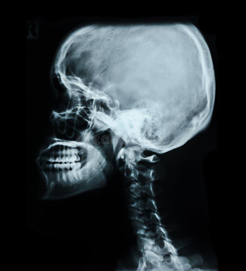 Image humaine de rayon X de crâne image libre de droits
