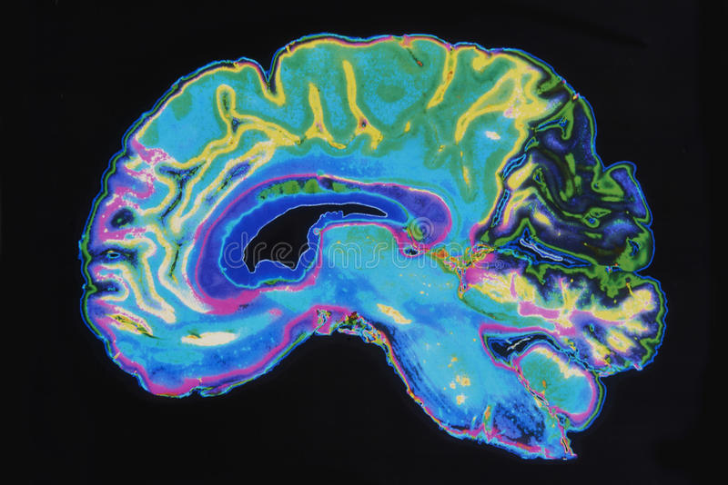 Image IRM Brain On Black Background photo libre de droits